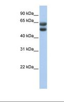 ZNF331 Antibody - Fetal lung lysate. Antibody concentration: 1.0 ug/ml. Gel concentration: 12%.  This image was taken for the unconjugated form of this product. Other forms have not been tested.