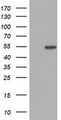 HEK293T cells were transfected with the pCMV6-ENTRY control (Left lane) or pCMV6-ENTRY ZNF365 (Right lane) cDNA for 48 hrs and lysed. Equivalent amounts of cell lysates (5 ug per lane) were separated by SDS-PAGE and immunoblotted with anti-ZNF365.