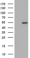 ZNF365 Antibody - HEK293T cells were transfected with the pCMV6-ENTRY control (Left lane) or pCMV6-ENTRY ZNF365 (Right lane) cDNA for 48 hrs and lysed. Equivalent amounts of cell lysates (5 ug per lane) were separated by SDS-PAGE and immunoblotted with anti-ZNF365.