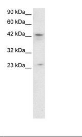 ZNF365 Antibody - HepG2 Cell Lysate.  This image was taken for the unconjugated form of this product. Other forms have not been tested.