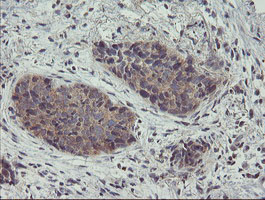 IHC of paraffin-embedded Carcinoma of Human lung tissue using anti-ZNF365 mouse monoclonal antibody.