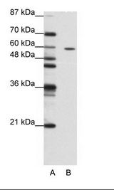 ZNF382 Antibody - A: Marker, B: Jurkat Cell Lysate.  This image was taken for the unconjugated form of this product. Other forms have not been tested.