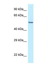 ZNF384 antibody LS-C145769 Western blot of PANC1 Cell lysate. Antibody concentration 1 ug/ml.  This image was taken for the unconjugated form of this product. Other forms have not been tested.