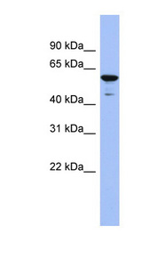 ZNF391 Antibody - ZNF391 antibody Western blot of Fetal Lung lysate. This image was taken for the unconjugated form of this product. Other forms have not been tested.
