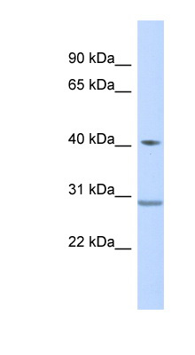 ZNF396 antibody LS-C110449 Western blot of Fetal Muscle lysate.  This image was taken for the unconjugated form of this product. Other forms have not been tested.