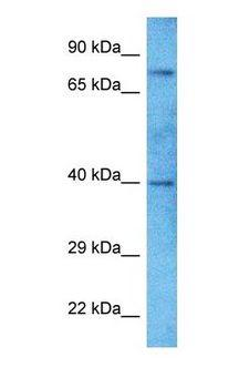 ZNF418 Antibody - Western blot of ZN418 Antibody with human Fetal Liver lysate.  This image was taken for the unconjugated form of this product. Other forms have not been tested.