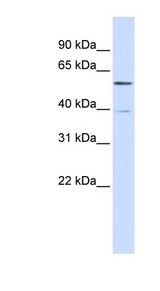 ZNF419 antibody Western blot of 293T cell lysate. This image was taken for the unconjugated form of this product. Other forms have not been tested.
