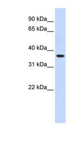 ZNF444 antibody LS-C101584 Western blot of Fetal liver lysate.  This image was taken for the unconjugated form of this product. Other forms have not been tested.