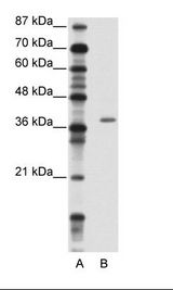 ZNF444 Antibody - A: Marker, B: Jurkat Cell Lysate.  This image was taken for the unconjugated form of this product. Other forms have not been tested.