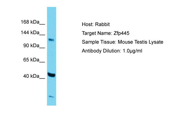 ZNF445 Antibody -  This image was taken for the unconjugated form of this product. Other forms have not been tested.
