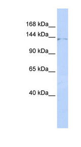 ZNF445 Antibody - ZNF445 antibody Western blot of HepG2 cell lysate. This image was taken for the unconjugated form of this product. Other forms have not been tested.