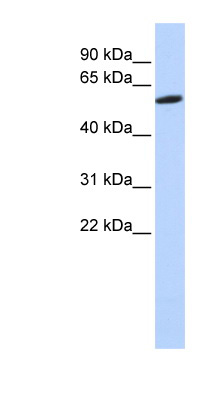 ZNF454 antibody LS-C101617 Western blot of HeLa lysate.  This image was taken for the unconjugated form of this product. Other forms have not been tested.