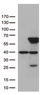 ZNF480 Antibody - HEK293T cells were transfected with the pCMV6-ENTRY control. (Left lane) or pCMV6-ENTRY ZNF480. (Right lane) cDNA for 48 hrs and lysed. Equivalent amounts of cell lysates. (5 ug per lane) were separated by SDS-PAGE and immunoblotted with anti-ZNF480. (1:500)