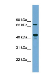 ZNF496 antibody LS-C116118 Western blot of SP2/0 cell lysate.  This image was taken for the unconjugated form of this product. Other forms have not been tested.