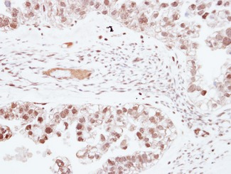 ZNF501 Antibody - IHC of paraffin-embedded OVCA, using ZNF501 antibody at 1:250 dilution.