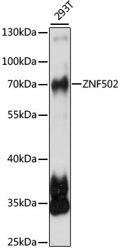 ZNF502 Antibody - Western blot analysis of extracts of 293T cells, using ZNF502 antibody at 1:1000 dilution. The secondary antibody used was an HRP Goat Anti-Rabbit IgG (H+L) at 1:10000 dilution. Lysates were loaded 25ug per lane and 3% nonfat dry milk in TBST was used for blocking. An ECL Kit was used for detection and the exposure time was 20s.