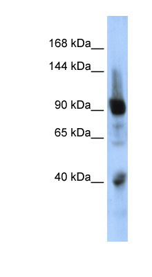 ZNF507 antibody LS-C101579 Western blot of Fetal Muscle lysate.  This image was taken for the unconjugated form of this product. Other forms have not been tested.