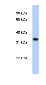 ZNF511 Antibody - ZNF511 antibody Western blot of Transfected 293T cell lysate. This image was taken for the unconjugated form of this product. Other forms have not been tested.