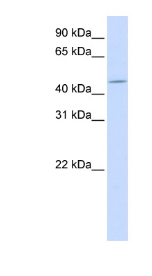 ZNF529 antibody LS-C101768 Western blot of Fetal Liver lysate.  This image was taken for the unconjugated form of this product. Other forms have not been tested.
