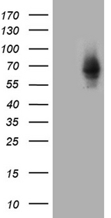 ZNF543 Antibody - HEK293T cells were transfected with the pCMV6-ENTRY control. (Left lane) or pCMV6-ENTRY ZNF543. (Right lane) cDNA for 48 hrs and lysed