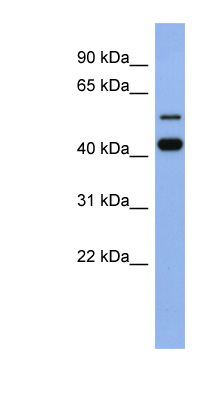 ZNF547 antibody LS-C110224 Western blot of Fetal Spleen lysate.  This image was taken for the unconjugated form of this product. Other forms have not been tested.