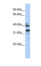 ZNF550 Antibody - Fetal heart lysate. Antibody concentration: 1.0 ug/ml. Gel concentration: 12%.  This image was taken for the unconjugated form of this product. Other forms have not been tested.