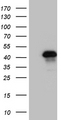 HEK293T cells were transfected with the pCMV6-ENTRY control. (Left lane) or pCMV6-ENTRY ZNF558. (Right lane) cDNA for 48 hrs and lysed. Equivalent amounts of cell lysates. (5 ug per lane) were separated by SDS-PAGE and immunoblotted with anti-ZNF558. (1:2000)