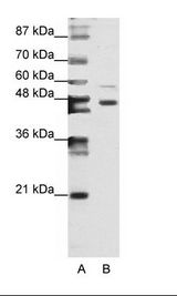 ZNF558 Antibody - A: Marker, B: Jurkat Cell Lysate.  This image was taken for the unconjugated form of this product. Other forms have not been tested.