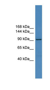ZNF574 Antibody - ZNF574 antibody Western blot of COLO205 cell lysate. This image was taken for the unconjugated form of this product. Other forms have not been tested.