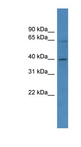 ZNF579 Antibody - ZNF579 antibody Western blot of HeLa lysate. This image was taken for the unconjugated form of this product. Other forms have not been tested.