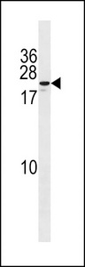ZNF580 Antibody western blot of MDA-MB453 cell line lysates (35 ug/lane). The ZNF580 antibody detected the ZNF580 protein (arrow).