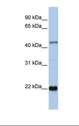 ZNF581 Antibody - 721_B cell lysate. Antibody concentration: 1.0 ug/ml. Gel concentration: 12%.  This image was taken for the unconjugated form of this product. Other forms have not been tested.