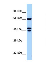 ZNF583 antibody Western blot of Mouse Pancreas lysate. Antibody concentration 1 ug/ml.  This image was taken for the unconjugated form of this product. Other forms have not been tested.