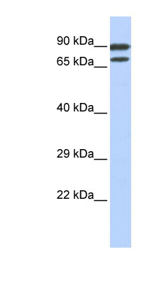 ZNF583 antibody LS-C101608 Western blot of Jurkat lysate.  This image was taken for the unconjugated form of this product. Other forms have not been tested.