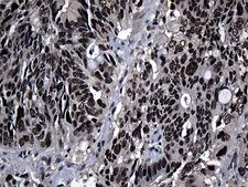 ZNF583 Antibody - Immunohistochemical staining of paraffin-embedded Adenocarcinoma of Human colon tissue using anti-ZNF583 mouse monoclonal antibody. (Heat-induced epitope retrieval by 1mM EDTA in 10mM Tris buffer. (pH8.5) at 120°C for 3 min. (1:500)