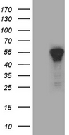 ZNF583 Antibody - HEK293T cells were transfected with the pCMV6-ENTRY control. (Left lane) or pCMV6-ENTRY ZNF583. (Right lane) cDNA for 48 hrs and lysed