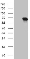 ZNF583 Antibody - HEK293T cells were transfected with the pCMV6-ENTRY control. (Left lane) or pCMV6-ENTRY ZNF583. (Right lane) cDNA for 48 hrs and lysed. Equivalent amounts of cell lysates. (5 ug per lane) were separated by SDS-PAGE and immunoblotted with anti-ZNF583. (1:2000)