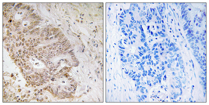 Immunohistochemistry analysis of paraffin-embedded human colon carcinoma tissue, using ZNF592 Antibody. The picture on the right is blocked with the synthesized peptide.