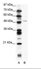 ZNF627 Antibody - A: Marker, B: Jurkat Cell Lysate.  This image was taken for the unconjugated form of this product. Other forms have not been tested.