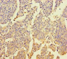 ZNF662 Antibody - Immunohistochemistry of paraffin-embedded human cervical cancer using ZNF662 Antibody at dilution of 1:100