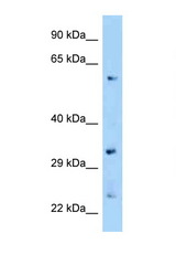 ZNF664 antibody Western blot of Mouse Kidney lysate. Antibody concentration 1 ug/ml.  This image was taken for the unconjugated form of this product. Other forms have not been tested.