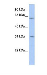 ZNF677 Antibody - Placenta lysate. Antibody concentration: 1.0 ug/ml. Gel concentration: 12%.  This image was taken for the unconjugated form of this product. Other forms have not been tested.