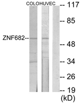 Western blot analysis of lysates from COLO205 and HUVEC cells, using ZNF682 Antibody. The lane on the right is blocked with the synthesized peptide.