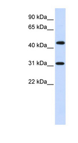 ZNF684 Antibody - ZNF684 antibody Western blot of Fetal Brain lysate. This image was taken for the unconjugated form of this product. Other forms have not been tested.