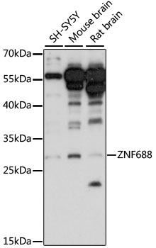 ZNF688 Antibody - Western blot analysis of extracts of various cell lines, using ZNF688 antibody at 1:1000 dilution. The secondary antibody used was an HRP Goat Anti-Rabbit IgG (H+L) at 1:10000 dilution. Lysates were loaded 25ug per lane and 3% nonfat dry milk in TBST was used for blocking. An ECL Kit was used for detection and the exposure time was 90s.