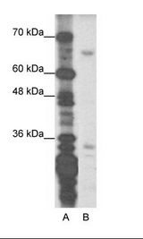 ZNF691 Antibody - A: Marker, B: Transfected 239T.  This image was taken for the unconjugated form of this product. Other forms have not been tested.