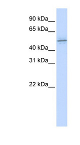 ZNF701 antibody LS-C101583 Western blot of MCF7 cell lysate.  This image was taken for the unconjugated form of this product. Other forms have not been tested.