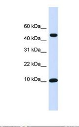 ZNF706 Antibody - Transfected 293T cell lysate. Antibody concentration: 1.0 ug/ml. Gel concentration: 10-20%.  This image was taken for the unconjugated form of this product. Other forms have not been tested.