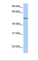 ZNF708 Antibody - Fetal liver lysate. Antibody concentration: 1.0 ug/ml. Gel concentration: 12%.  This image was taken for the unconjugated form of this product. Other forms have not been tested.