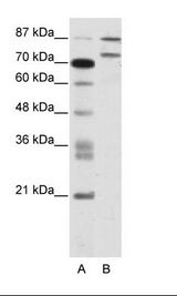 ZNF709 Antibody - A: Marker, B: Jurkat Cell Lysate.  This image was taken for the unconjugated form of this product. Other forms have not been tested.